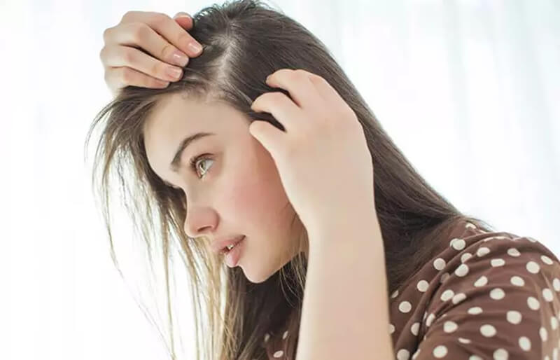 Rụng tóc mãn tính
