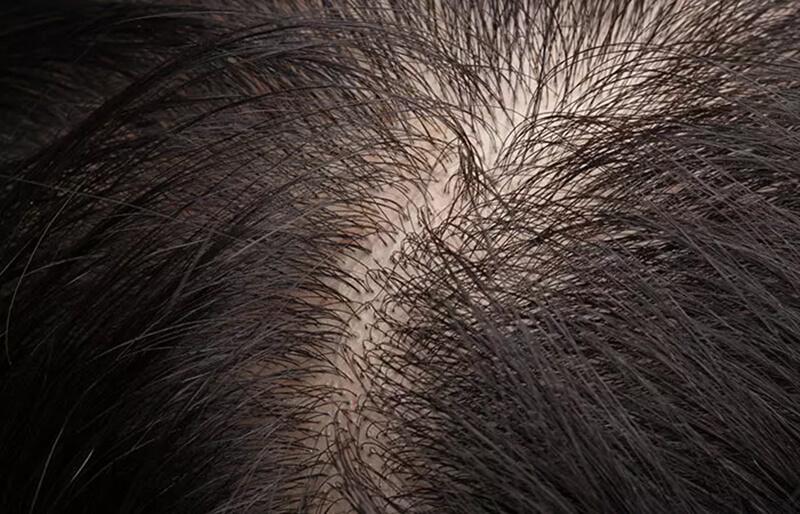 Tóc rụng tạm thời
