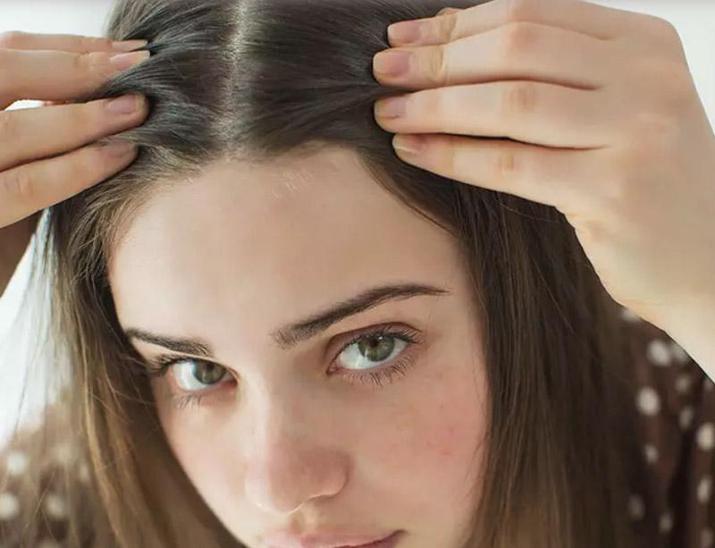 12 Tuyệt chiêu loại bỏ và ngăn ngừa tóc bạc cực hiệu quả