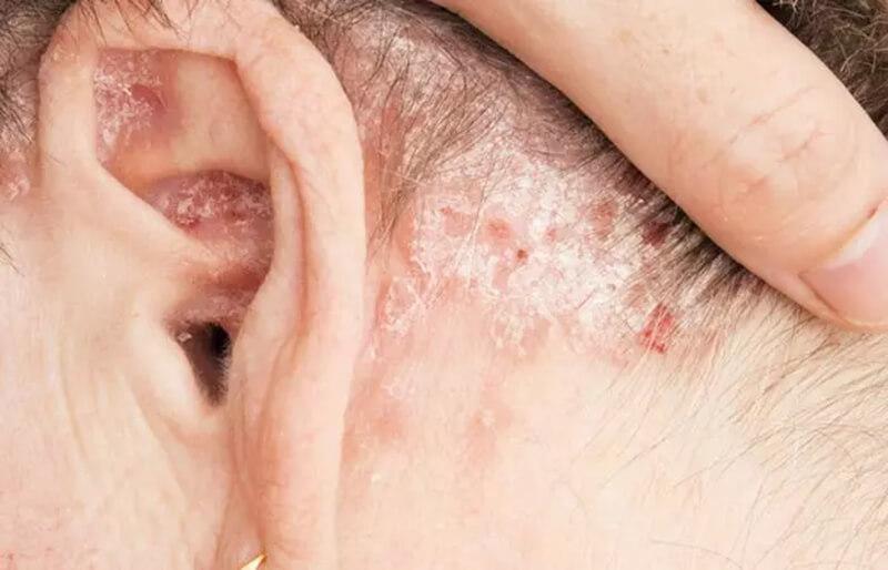 Gàu gây ra bởi bệnh vẩy nến