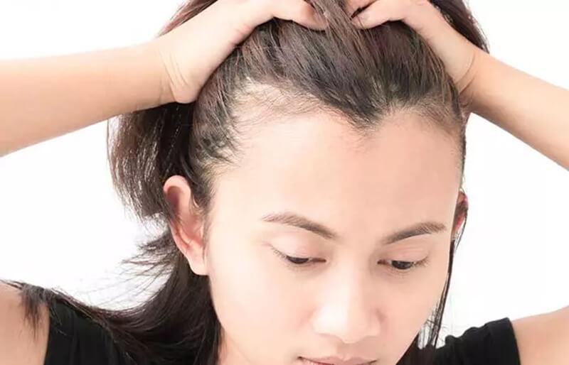 Làm mỏng tóc