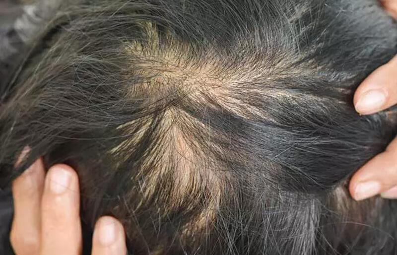 Các triệu chứng rụng tóc do thiếu I-ốt
