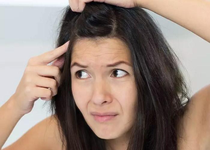 Gàu và rụng tóc: Nguyên nhân và cách điều trị hiệu quả