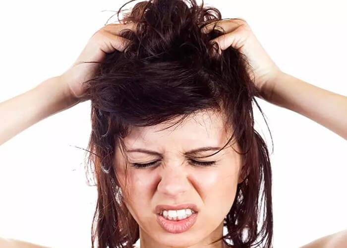Nấm da đầu: Nguyên nhân, dấu hiệu nhận biết và cách điều trị