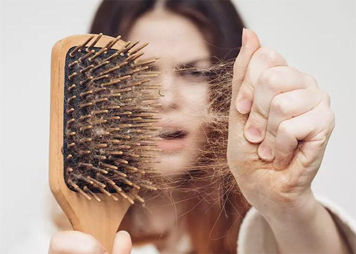 Nguyên nhân gây ra hói đầu và các giải pháp điều trị