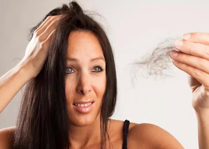 Tìm hiểu về rụng tóc và các cách điều trị tự nhiên